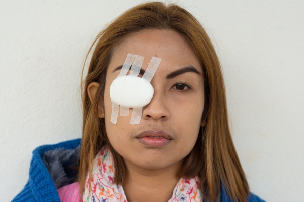Woman blindfolded with eye pad because eye inflammation
